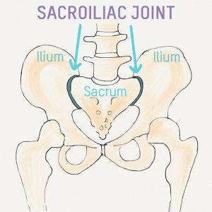 sacroiliits