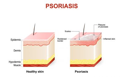 The Truth About Psoriasis